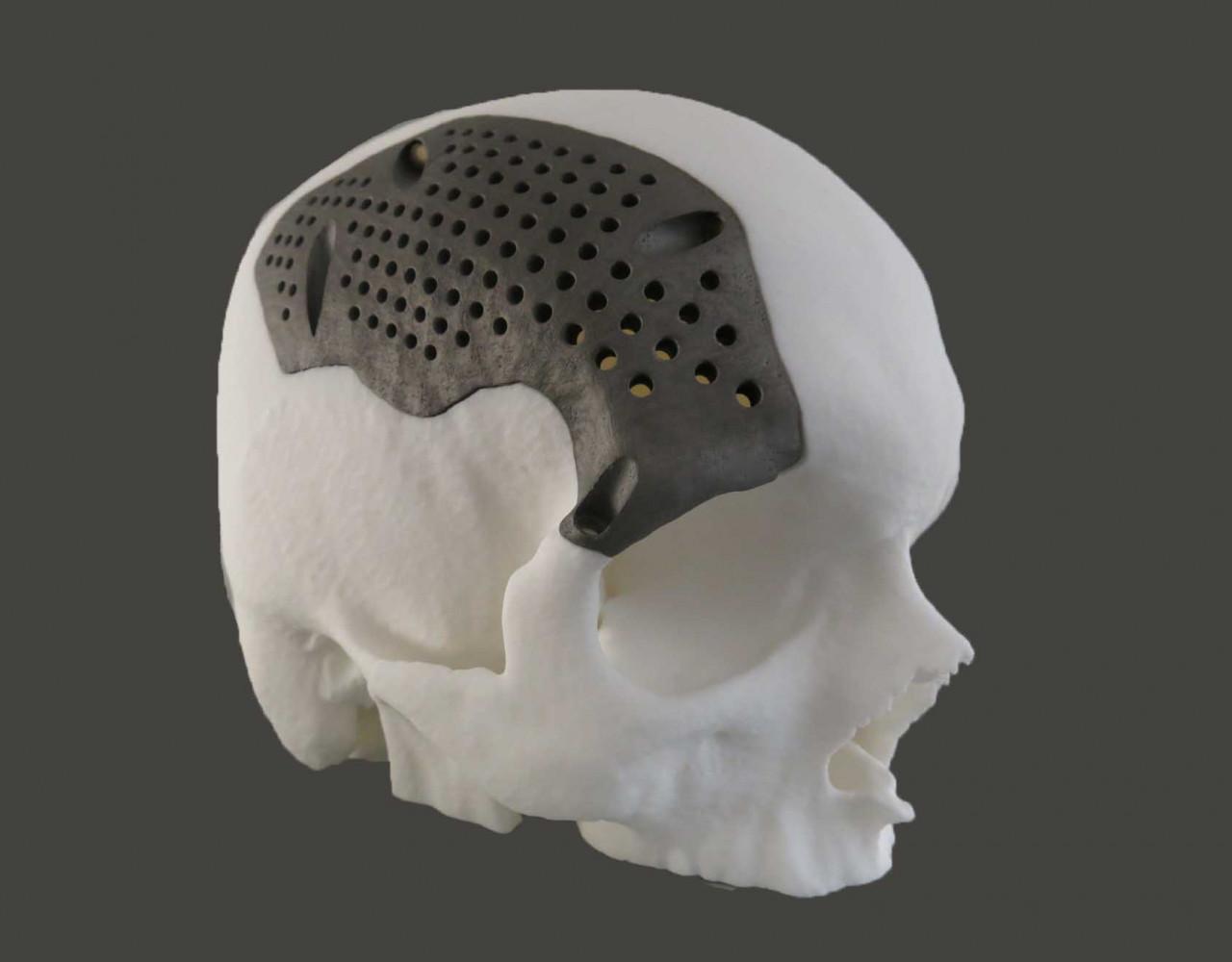 titanium-medical-implants-sculpteo